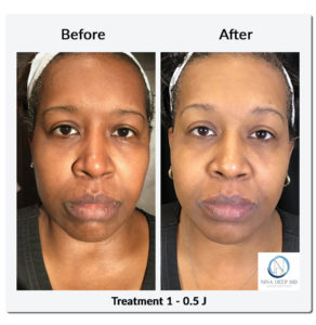 Before and after photos of a woman with a dark skin tone who received nitrogen plasma skin treatment